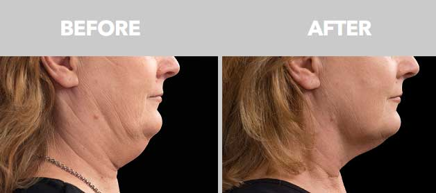 CoolSculpting Before After Double Chin 03