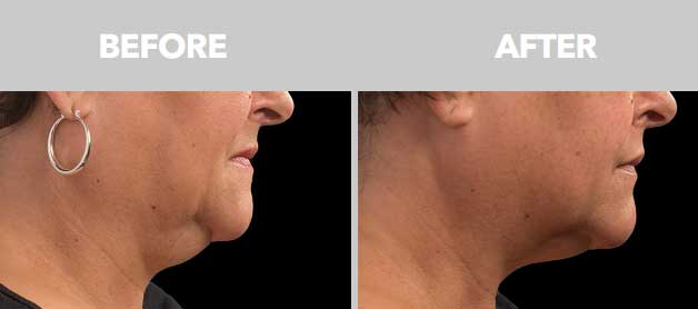 CoolSculpting Before After Double Chin 04