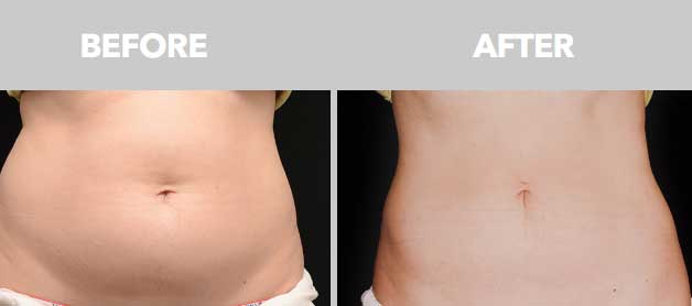 CoolSculpting Before After Images 06