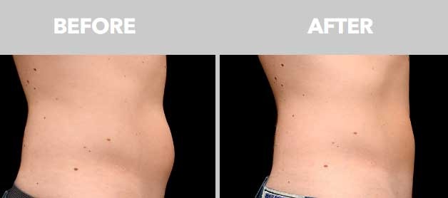 CoolSculpting Before After Abdomen