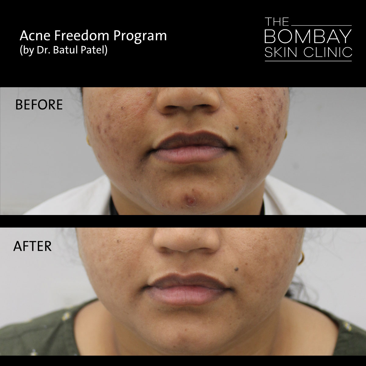 Acne Treatment Before After 01