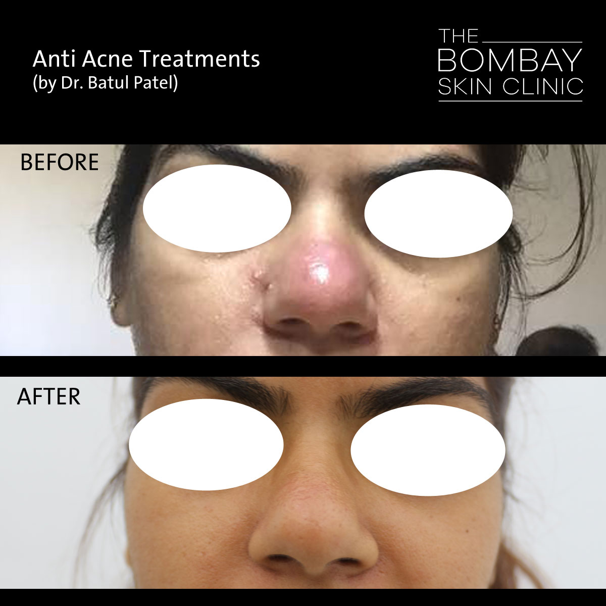 Acne nose before after